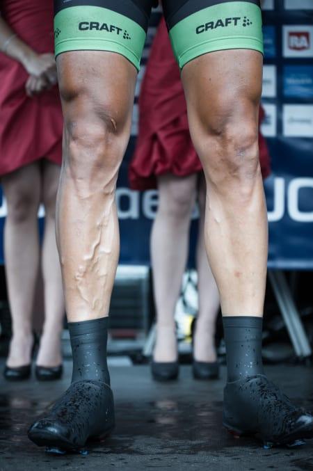 TO SKOLER: Hvilke ben kunne du aller helst tenke deg?